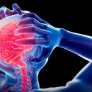 Epilepsi Hastalığı